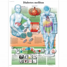 DIABETES MELLITUS - LAMINATED